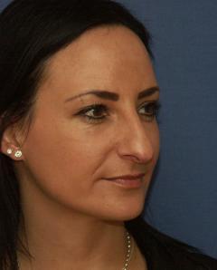 Langnase mit hängender breiter Nasenspitze vor der Nasenoperation durch Dr. Robert  Pavelka