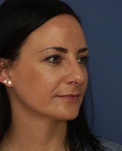 nach Nasenoperation durch Dr. Robert  Pavelka wegen Langnase mit hängender breiter Nasenspitze
