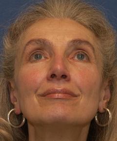 1 Jahr nach Nasenkorrekturoperation des Nasenflügelkollaps und Nasenrückens durch Dr. Robert Pavelka