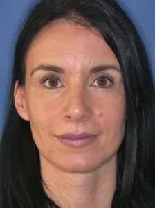 Rekonstruktive Nasenkorrektur durch Dr. Robert Pavelka nach Komplikation einer auswärtigen Nasenoperation