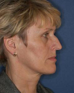 Höckernase vor der Nasenoperation durch Dr. Robert Pavelka