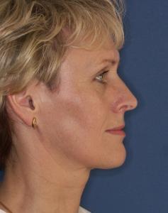 Höckernase nach der Nasenoperation durch Dr. Robert Pavelka