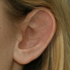 Fehlende Anthelisfalte bei abstehendem Ohr eines 12-jährigen Mädchens