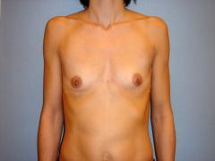 Patientin 1 - anatomisches Implantat vorher