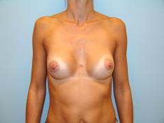 Patientin 1 - anatomisches Implantat nachher